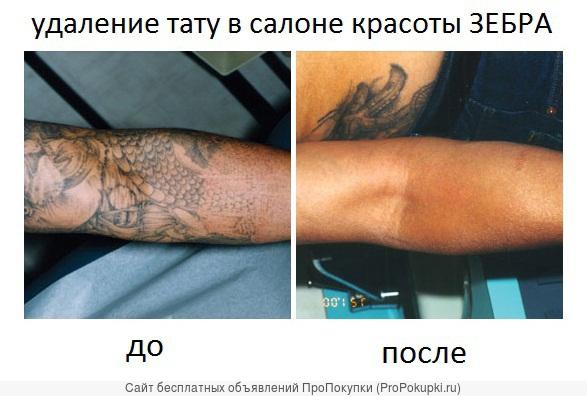 Удаление татуировок в салоне красоты ЗЕБРА