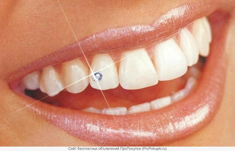 Установка скайсов на зубы