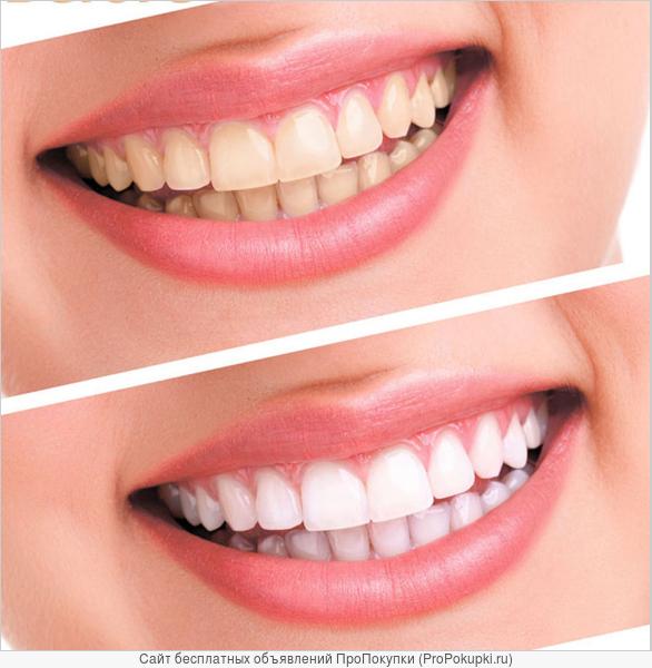 Отбеливатель зубов лазерный