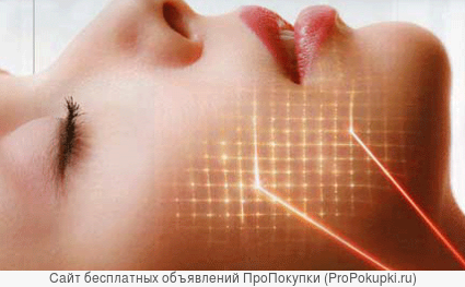 Шлифовка лица лазером СО2