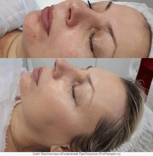 омолаживающая процедура на лице
