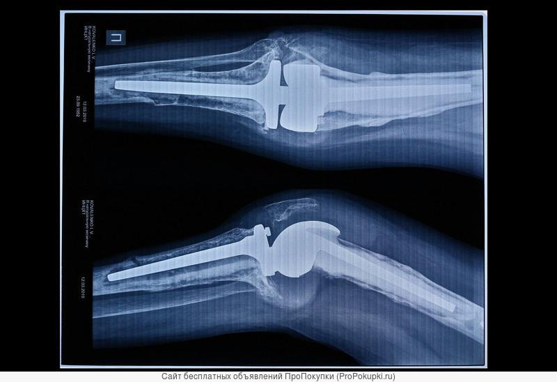 сканировать рентген снимок , пленку томографии