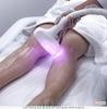 Эпиляция лазером ~ Удаление нежелательных волос аппаратом In-Motion D1