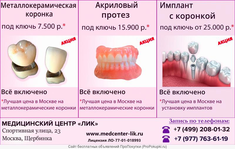Протезирование и имплантация зубов в Щербинке